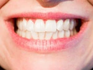 Sedation dentistry - Orange dentist