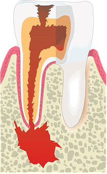 What is Endodontics?